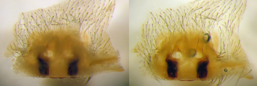 slide-prepared vulva of Pireneitega spassky (Amaurobiidae): left - in ethanol, right: in Hoyer's solution